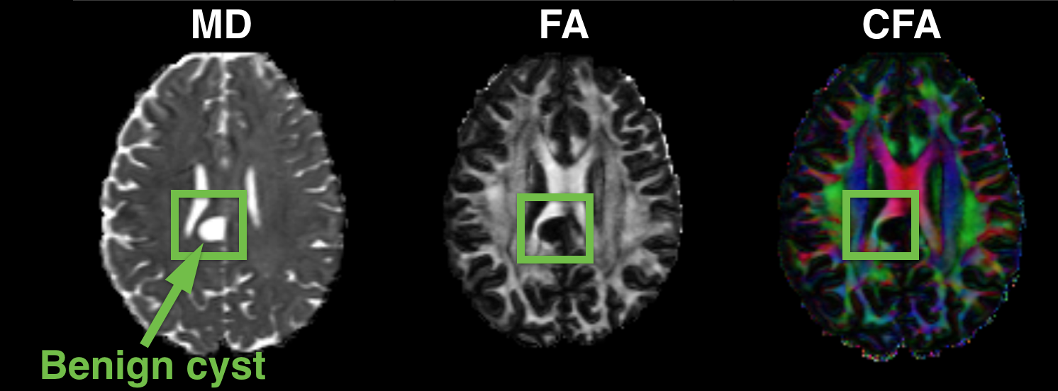 Visualisation of (a) MD, FA and colour FA maps computed from the DTI of a HCP subject with a small posterior midline arachnoid cyst in the central part of the brain. (b) the corresponding reconstruction accuracy (RMSE) in MD and the corresponding components of predicted uncertainty.