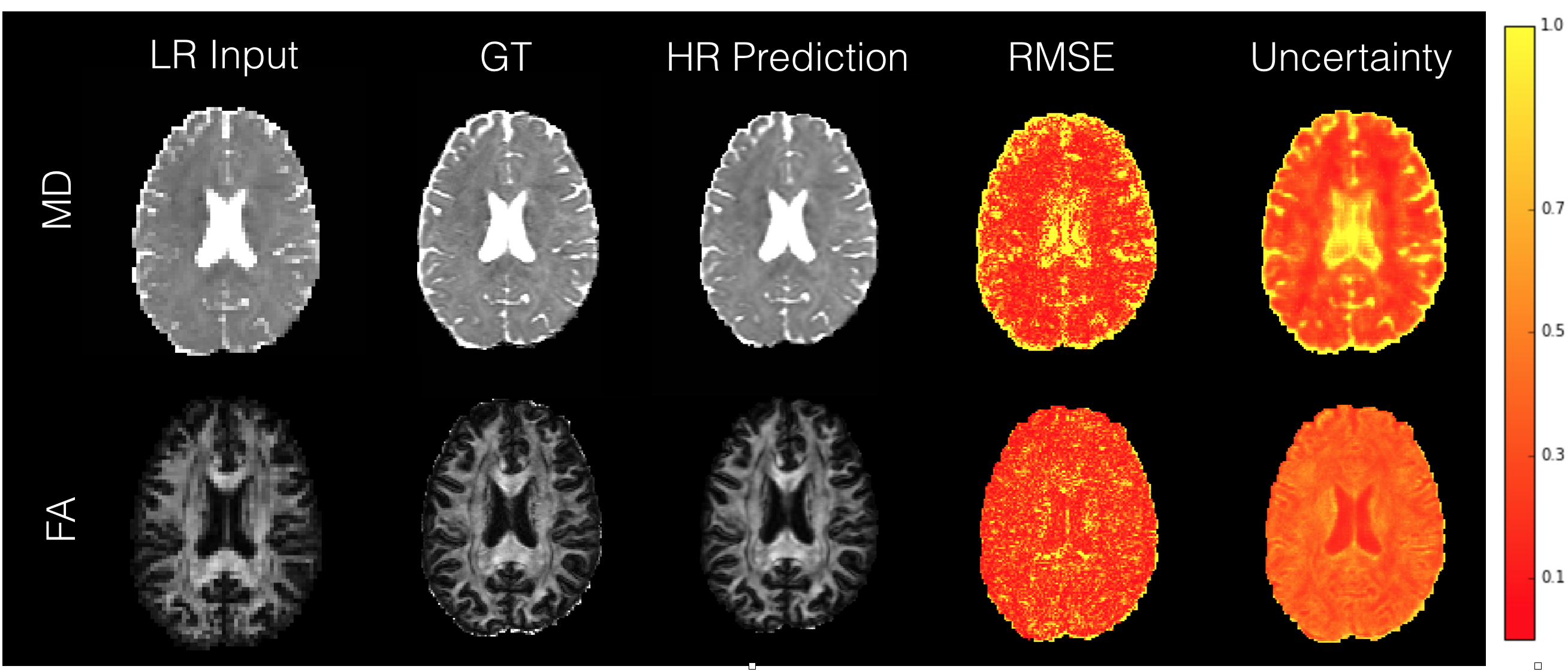 Comparison between voxel-wise RMSE and predictive uncertainty maps for FA and MD computed on a HCP test subject (min-max normalised for MD and FA separately). Low-res input, ground truth and the mean of high-resolution predictions are also shown.
