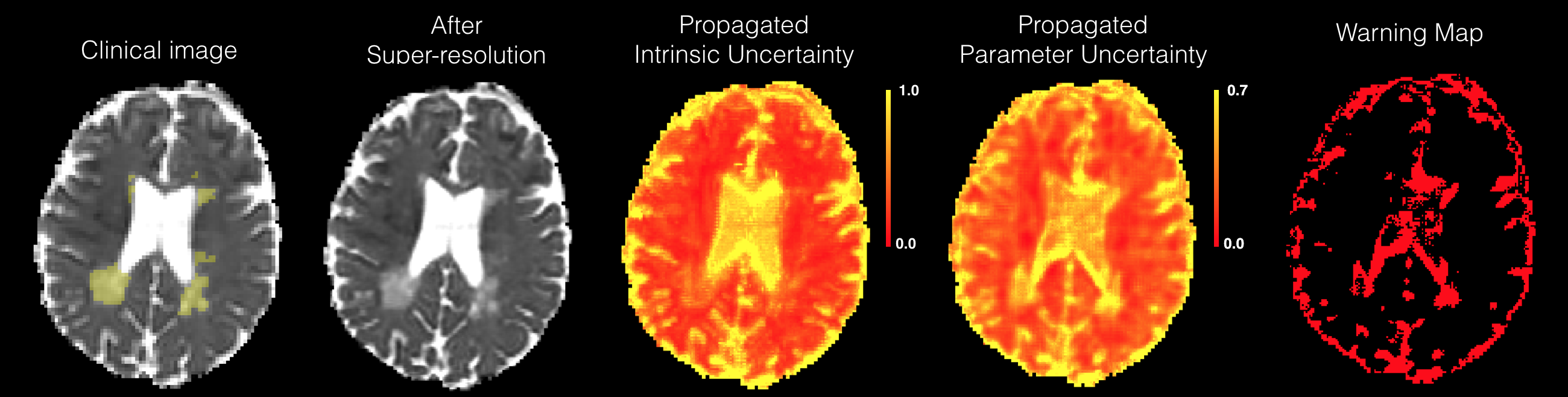 """Visualisation of propagated uncertainty components on clinical images with pathology that was not present in the training data. The super-resolution is performed on the clinical images due to low-resolution, and thus the ground truths are not available in both cases. (a) shows the results on the data of a Glioma patient, and the yellow circle indicates the region of tumour. (b) shows the same set of results on a MS patient with labels of focal lesions obtained from a neurologist indicated in yellow. Each row shows from left to right: (i) MD map computed from the original DTI; (ii) MD map computed from the output of super-resolution; (iii), (iv) maps of the estimated propagated intrinsic and parameter uncertainty; (v) """"warning map"""" obtained from the same threshold value used in Sec."""