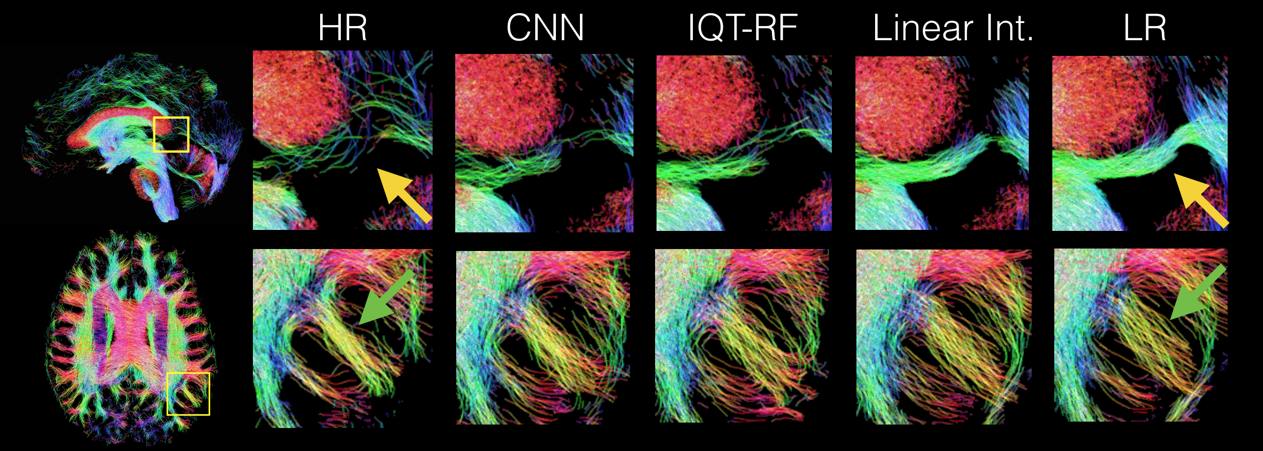 Streamline maps of the probabilistic tractography