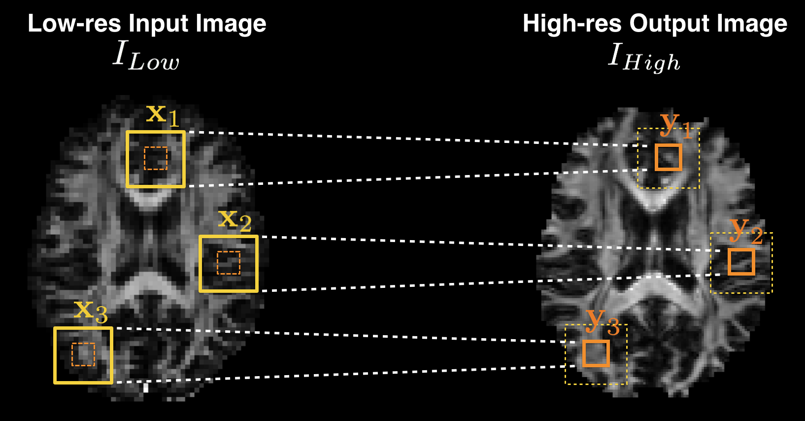 Illustration of the patch-wise regression in super-resolution application. The conditional distribution over the high quality image