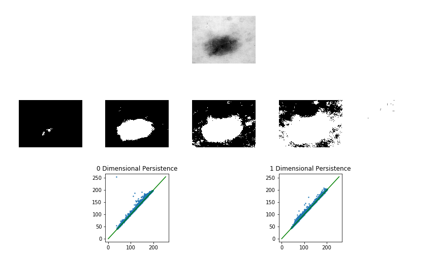 Top: An image from the ISIC dataset. Middle: A small sample of the full filtration of the top image. Bottom: The 0 and 1 dimensional persistence diagrams corresponding to the full filtration of the top image