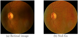 Sample result on a real retinal image. The NuI-Go can correct the illumination of retinal image while well preserving its details and color.