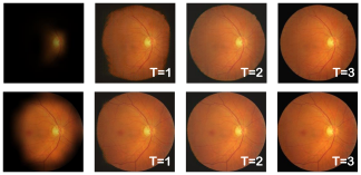 Stage-wise results of the NuI-Go network. From left to right are the input retinal images, the results of stage T=1, 2, and 3, respectively.