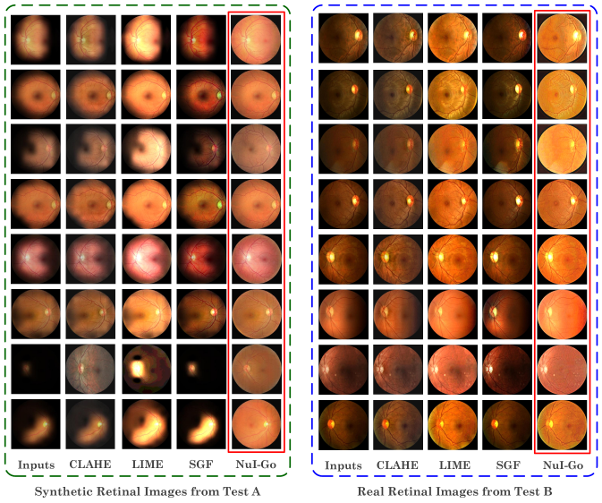 Visual comparisons on synthetic and real retinal images. Red box indicates our results.