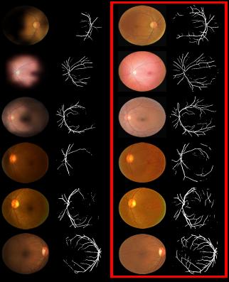 Visual retinal vessel segmentation results of real retinal images.
