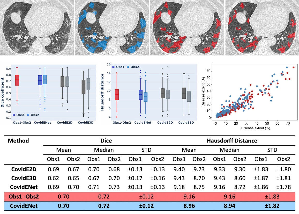 Comparison between automated and manual segmentations. Delineation of the diseased areas on chest CT in a COVID-19 patient: First Row: input, AI-segmentation, expert I-segmentation, expert II-segmentation. Second Row: Box-Plot Comparisons in terms of Dice similarity and Haussdorf between AI-solution, expert I & expert II, & Plot of correlation between disease extent automatically measured and the average disease extent measured from the