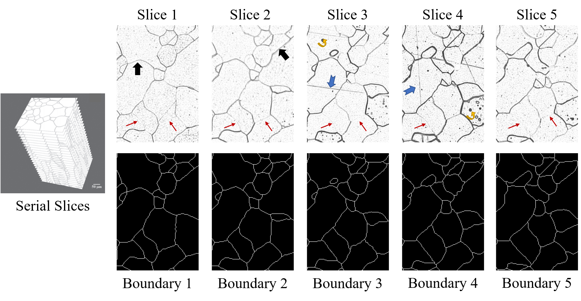 Microscopic serial slices of polycrystalline iron. The left is the demonstration of serial slices. The right top is five serial raw slices and the right bottom is its corresponding boundary results. For detailed visualization, we only add the scale bar in this Figure. All microscopic images share the same scale bar in this paper. (For interpretation of the references to color in this figure legend, the reader is referred to the web version of the article.)
