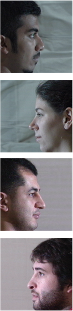 Face frontalization comparison on the Multi-PIE dataset under the pose of