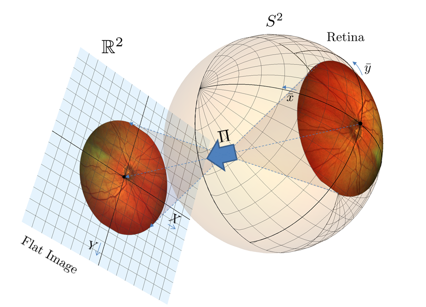 Photography of the retina. A part of the retina is projected onto the image plane. The camera coordinates are denoted by