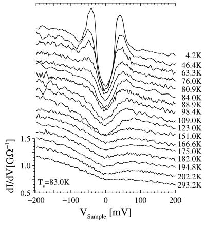 Tunneling conductance for underdoped Bi2212. A gap–like feature at zero bias is seen to persist in the normal state which is direct evidence of a pseudogap in the tunneling conductance. In the superconducting state a peak develops at