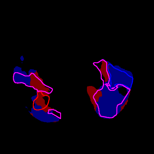 A qualitative evaluation of the resulting predictions for multiclass lesion segmentation on the validation set from each method (columns, from left to right: original CT, and predictions from WASS, UNWM, DMmc, 2DRnx, InfNet and MAJ). The manual ground truth is depicted as red (CON), green (GGO), blue (CPP) and magenta (COM) contours on each image. The predictions are shown with the same color representation. The three rows are slices from different CT scans for which the mean AVD over the different classes is respectively the median, first and third quartile value.