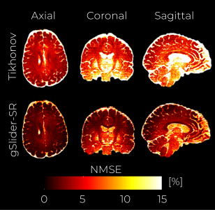 Simulation experiment with an acceleration factor of 2 X. A middle axial, coronal and sagittal slice of the NMSE maps from the reconstructed volumes are shown for the Tikhonov-based reconstruction (top row) and gSlider-SR -based reconstruction (bottom row).