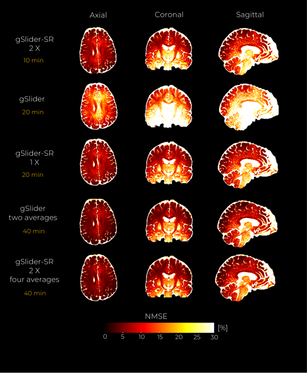 In-vivo data experiment with an acceleration factor of 2 X. A middle axial, coronal and sagittal slice of the NMSE maps from the reconstructed DWI volumes are shown for the gSlider, and gSlider-SR based reconstruction, respectively.