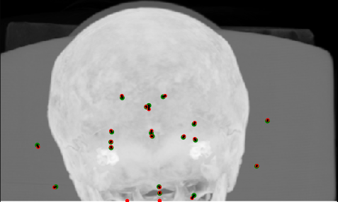Coronal, sagittal and axial maximum intensity projections (MIPs) of results for a good case (top) and a poor case (bottom). Green dots = ground truth (observer A), red dots = detected (proposed FCN), and black lines connect corresponding pairs.