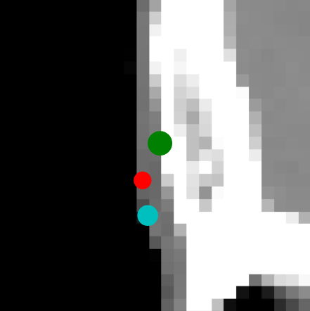 """A few landmark examples. The top row shows a comparison of landmark localisations at full resolution, with green and blue denoting observers A and B and red denoting the FCN detected landmark. The next 4 rows show the detected landmark for Pass 0 and Pass 1, at the 4mm and 2mm algorithmic operating resolutions respectively, along with MIPs of the FCN heatmaps (black = low certainty and white = high certainty). Slices are taken at the position of observer A, in the sagittal plane for all but the """"Top of R. ear"""" where a coronal slice is taken."""