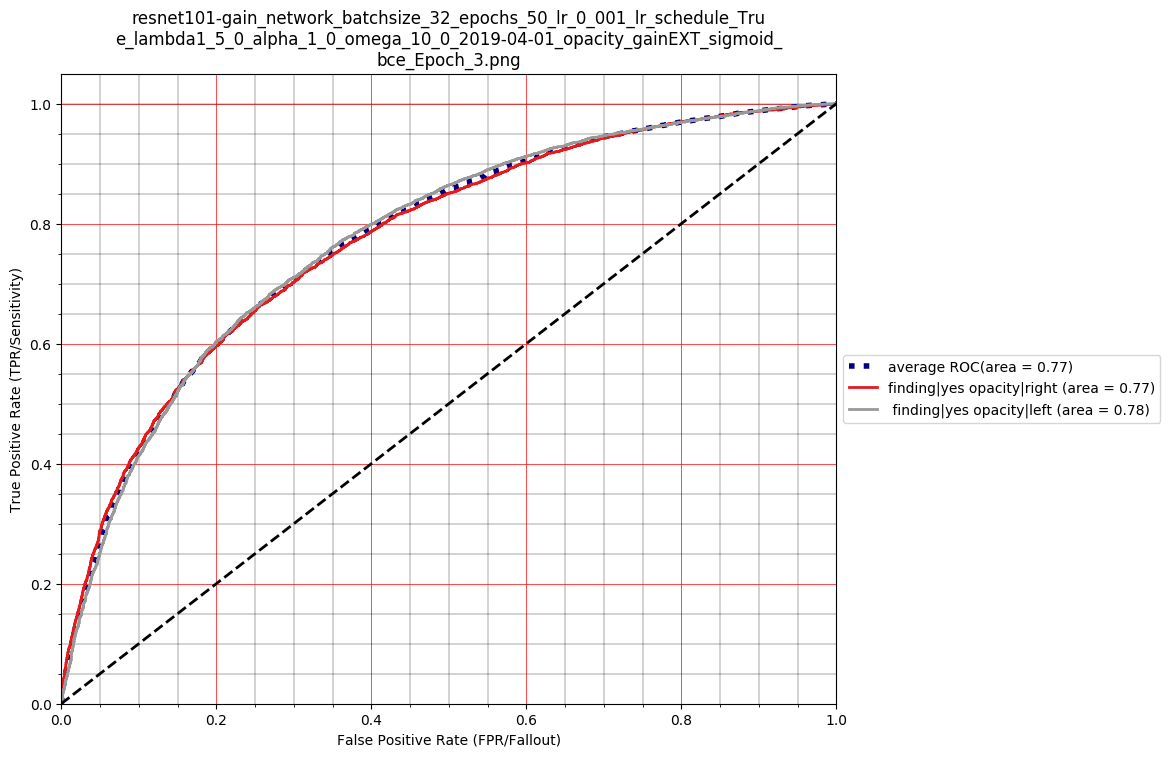 AUROC for the case of left and right opacity detection were computed for the GAIN network and the baseline ResNet-101. The baseline area under PR curve = 0.63, 0.82 and AUROC = 0.74, 0.74 for right and left opacity respectively. Similarly for the GAIN network the PR curve =