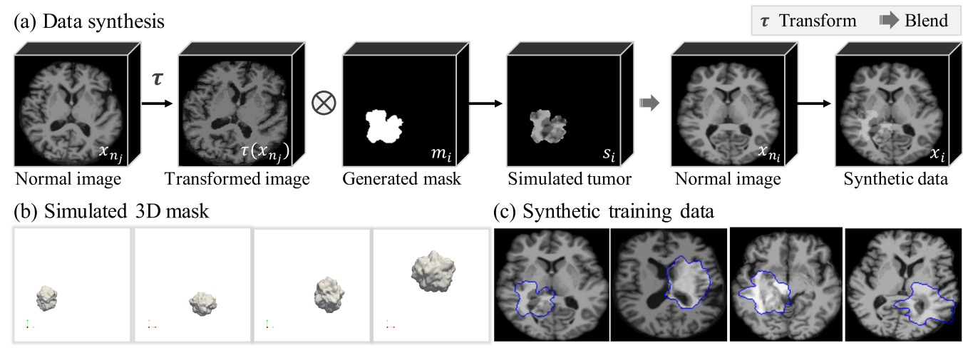 (a) Data synthesis pipeline. We first simulate the tumor with a transformed image and a generated mask, which provide texture and shape respectively. Then the data is composed by blending the simulated tumor into the normal image. (b) Visualization of the simulated 3D masks with various shapes, sizes and locations. (c) Visualization of synthetic images. Blue contour denotes the mask of the simulated tumor.