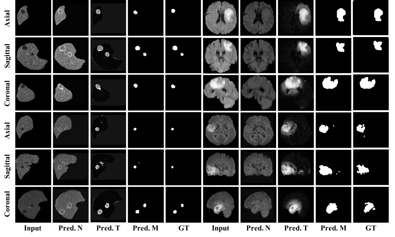 Zero-shot tumor segmentation from our self-supervised model on real tumor data sampled on axial, coronal, and sagittal views. The first five columns show the results of liver tumor, which corresponds to [Input, Predicted normal image (Pred.N), Predicted tumor image (Pred.T), Predicted mask (Pred.M), Ground Truth (GT). The last five columns show the results of brain tumors.