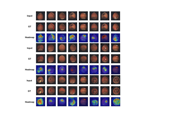 Anomaly localization on hazelnut class of MVTec AD. From top to bottom, input images, those with ground-truth localization area in red, heatmaps predicted by our model.