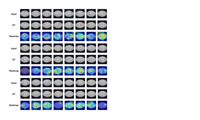 Anomaly localization on pill class of MVTec AD. From top to bottom, input images, those with ground-truth localization area in red, heatmaps predicted by our model.